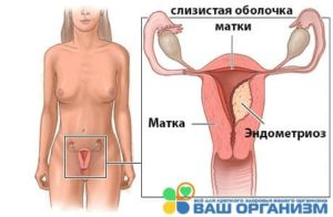 kvinnekropp blod under samleie