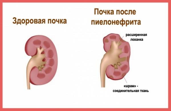 kvinnens orgasme smerter i nedre del av magen gravid